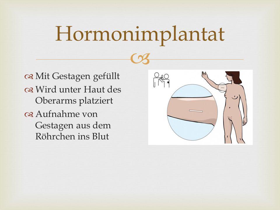 Hormonimplantat Mit Gestagen gefüllt