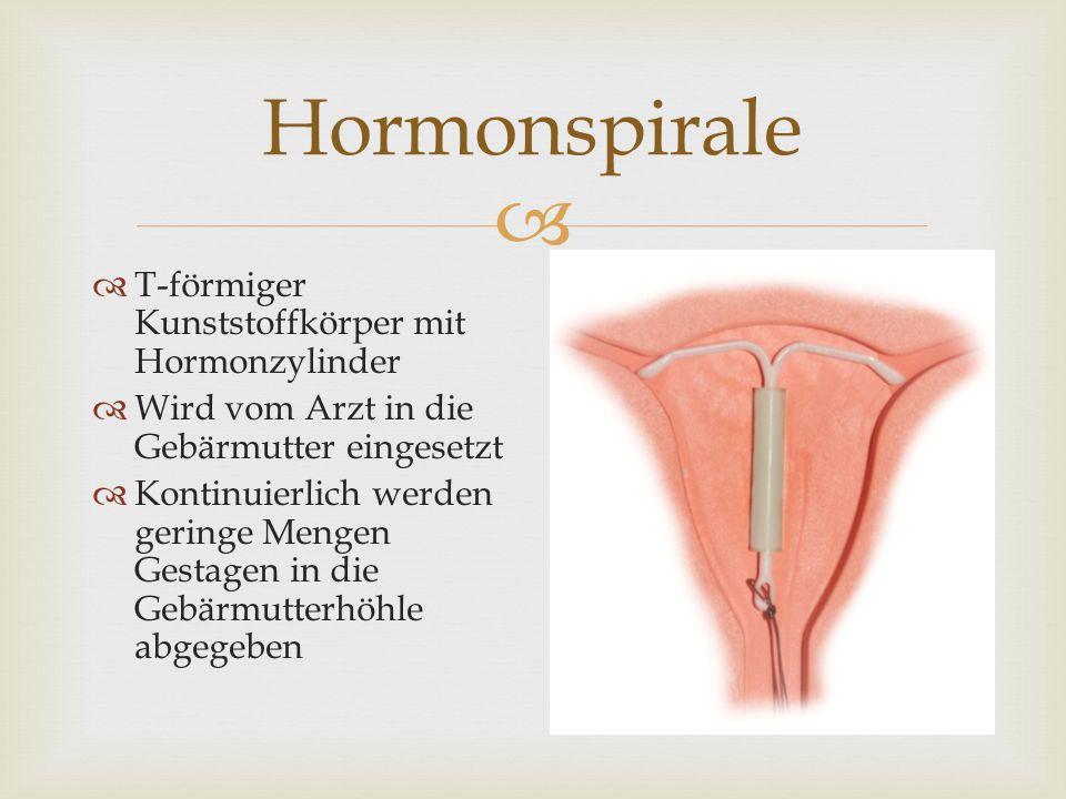 Hormonspirale T-förmiger Kunststoffkörper mit Hormonzylinder