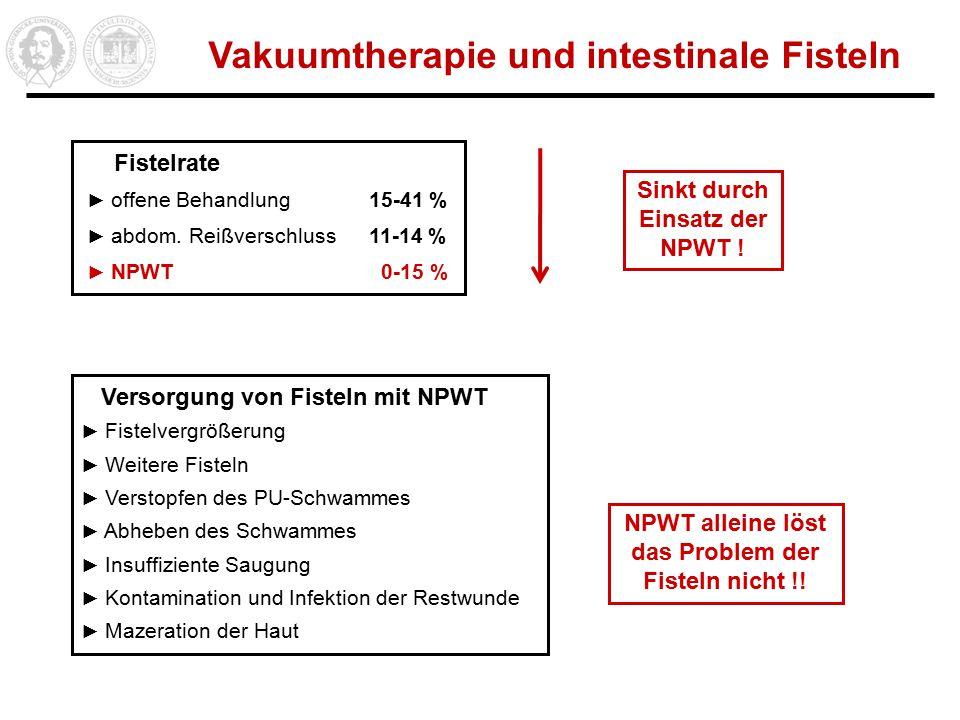 Vakuumtherapie und intestinale Fisteln