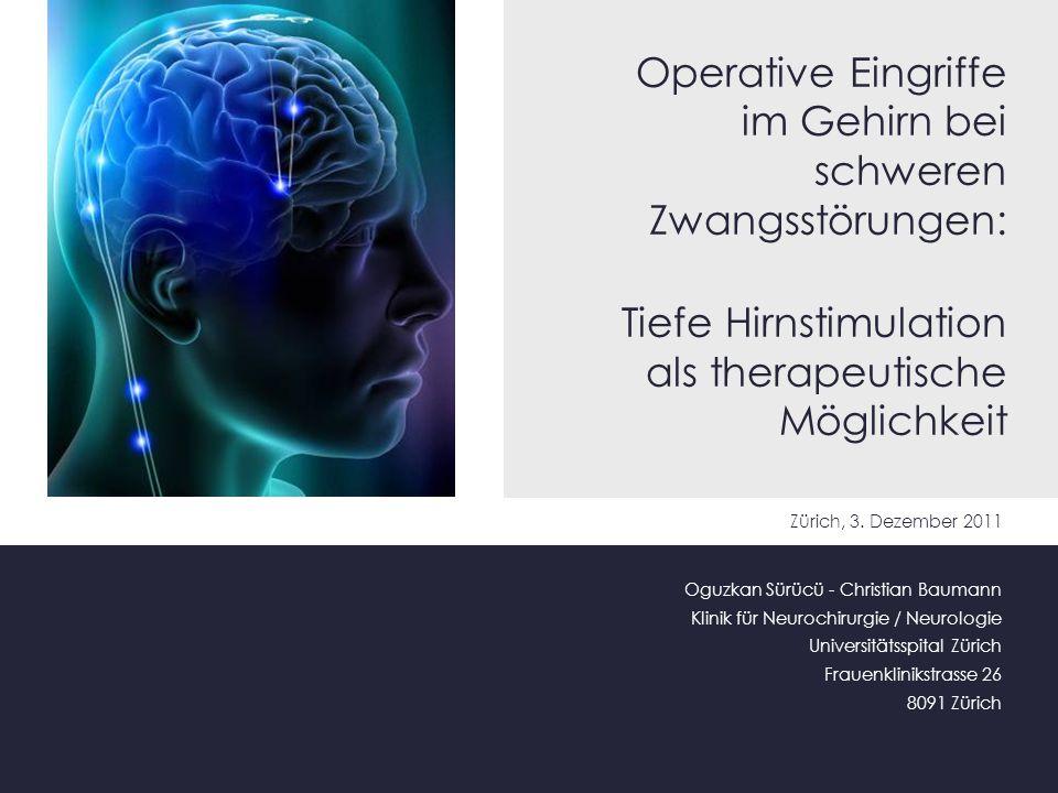 Operative Eingriffe im Gehirn bei schweren Zwangsstörungen: