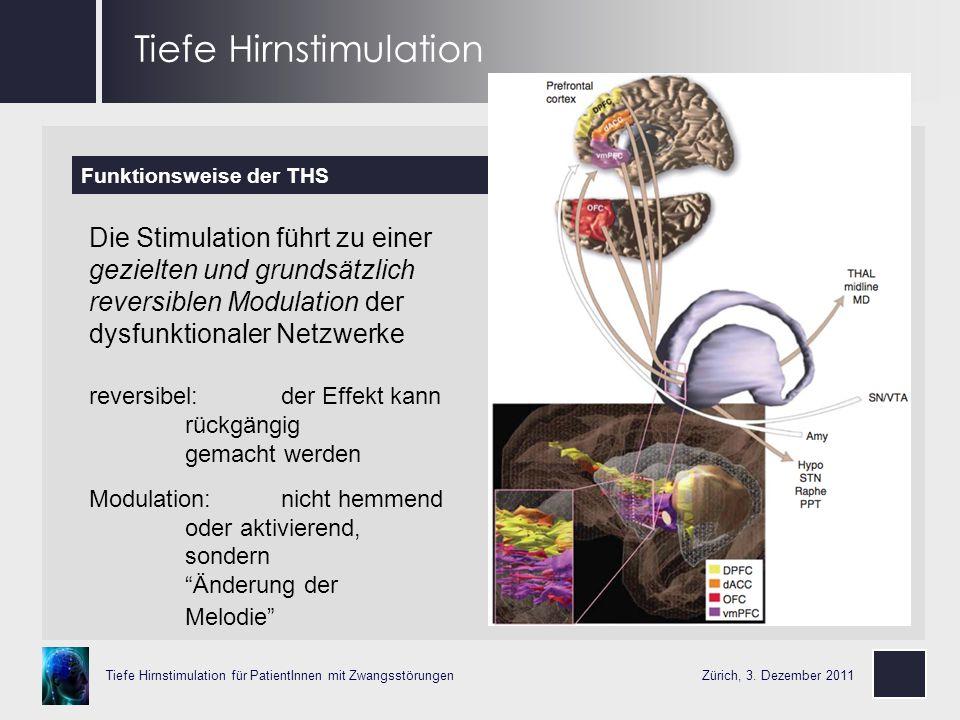 Tiefe Hirnstimulation
