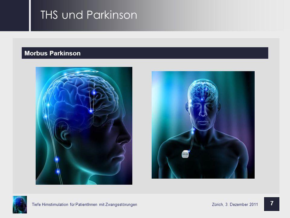 THS und Parkinson Morbus Parkinson 7