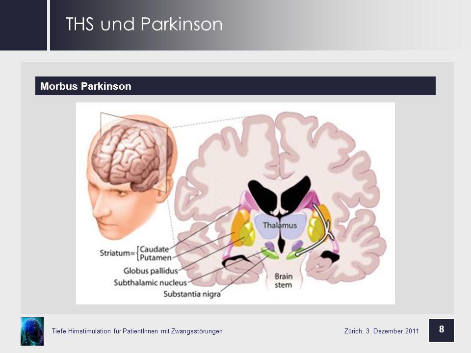 THS und Parkinson Morbus Parkinson 8