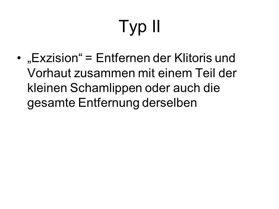 """Typ II """"Exzision = Entfernen der Klitoris und Vorhaut zusammen mit einem Teil der kleinen Schamlippen oder auch die gesamte Entfernung derselben."""