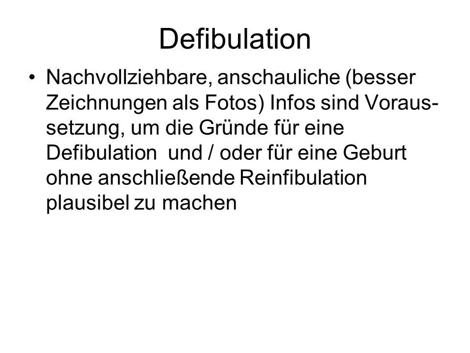 Defibulation