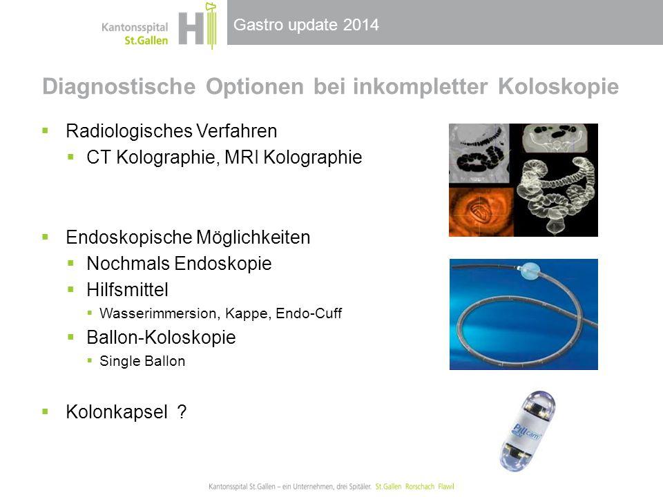 Diagnostische Optionen bei inkompletter Koloskopie