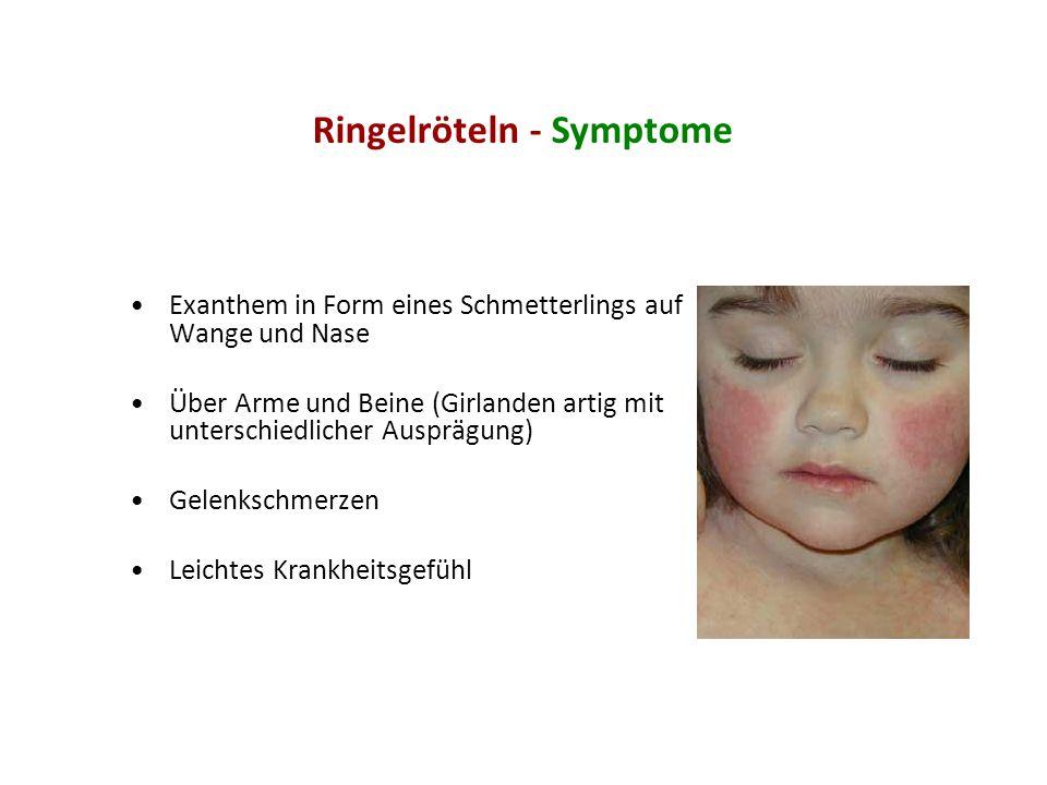 Ringelröteln - Symptome