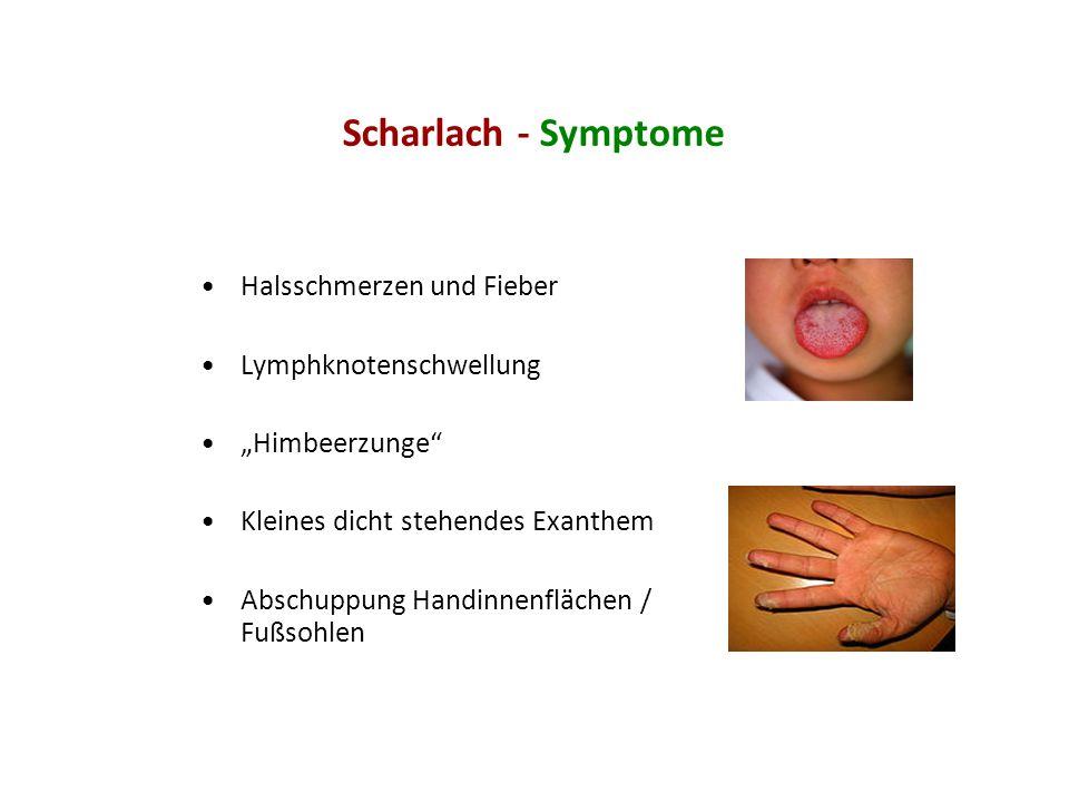 Scharlach - Symptome Halsschmerzen und Fieber Lymphknotenschwellung