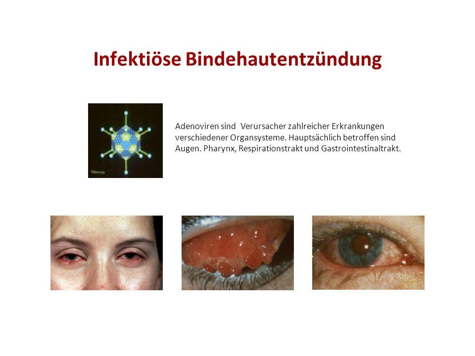 Infektiöse Bindehautentzündung