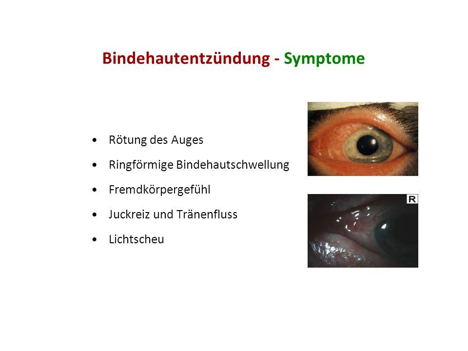 Bindehautentzündung - Symptome