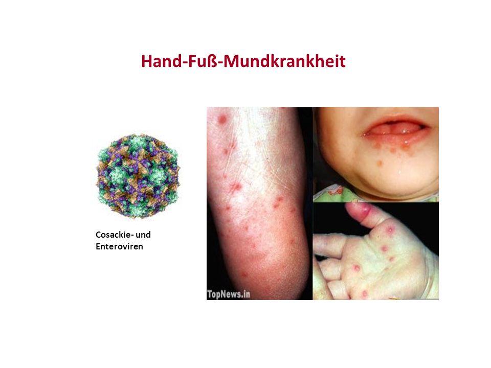 Hand-Fuß-Mundkrankheit