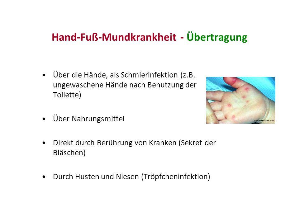Hand-Fuß-Mundkrankheit - Übertragung