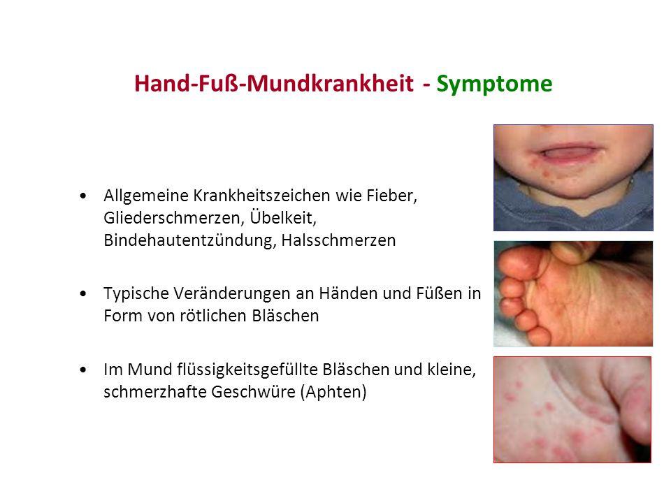Hand-Fuß-Mundkrankheit - Symptome