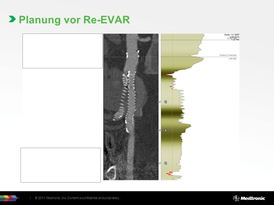 Planung vor Re-EVAR | © 2011 Medtronic, Inc. Content is confidential and proprietary.