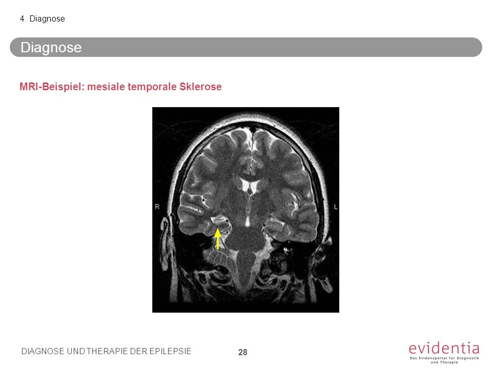 Diagnose MRI-Beispiel: mesiale temporale Sklerose 4. Diagnose