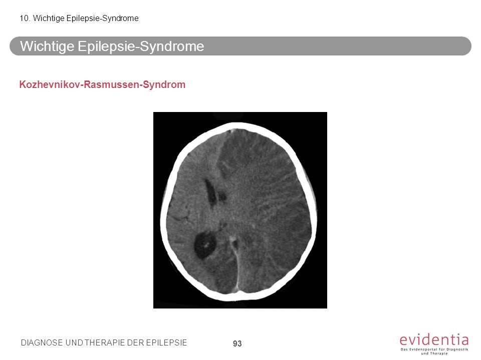 Wichtige Epilepsie-Syndrome