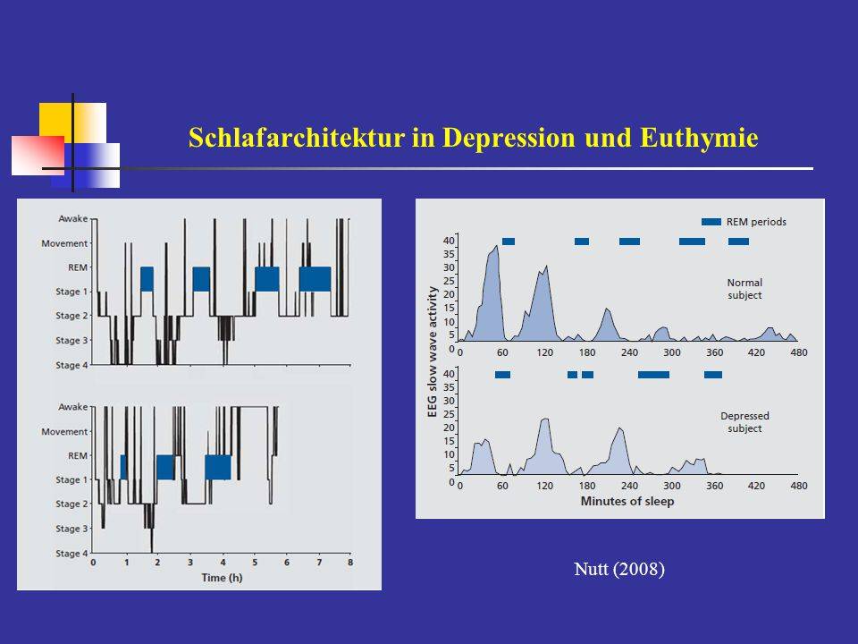 Schlafarchitektur in Depression und Euthymie