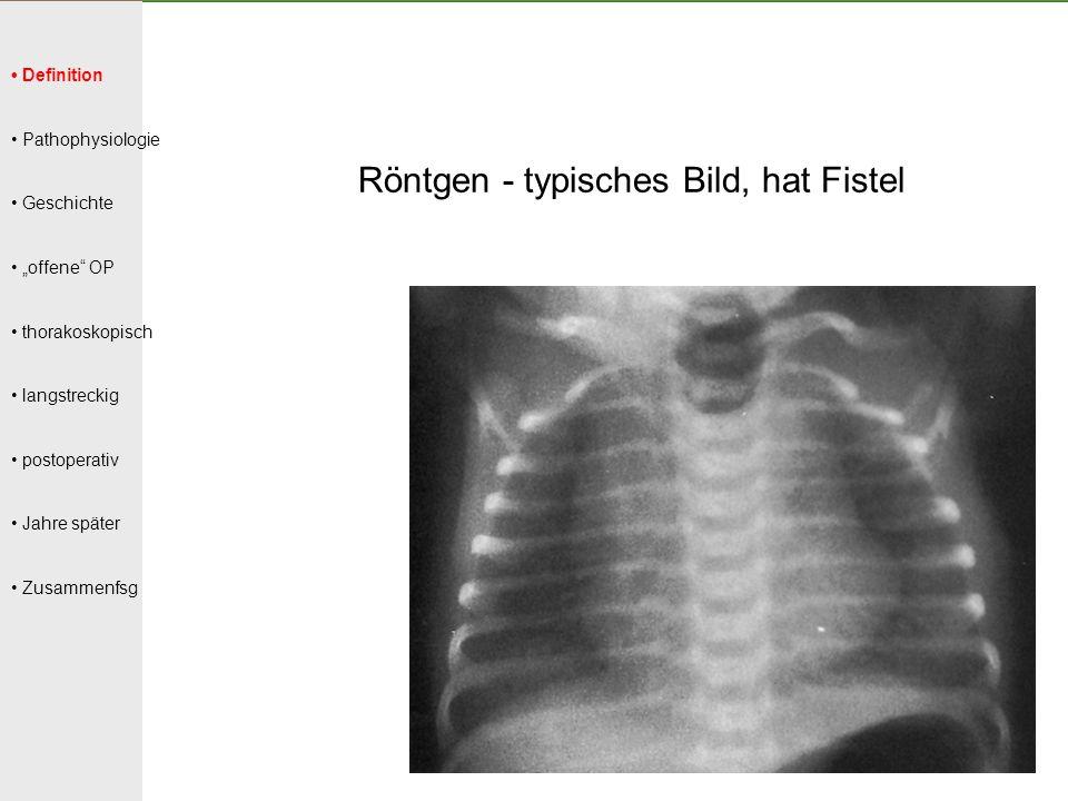 Röntgen - typisches Bild, hat Fistel