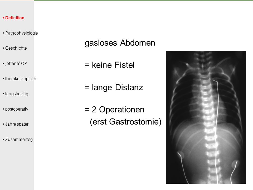 = 2 Operationen (erst Gastrostomie)