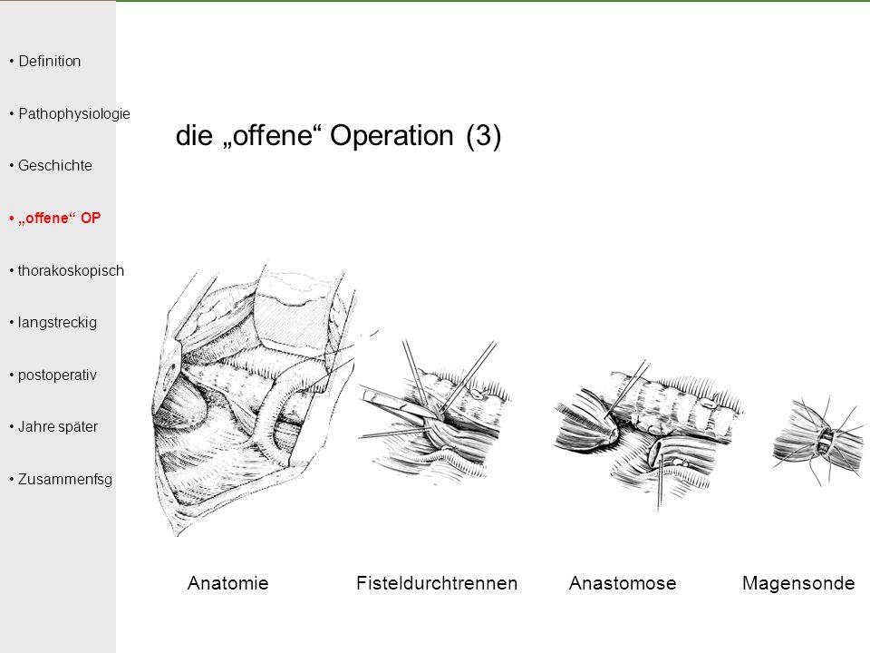 """die """"offene Operation (3)"""