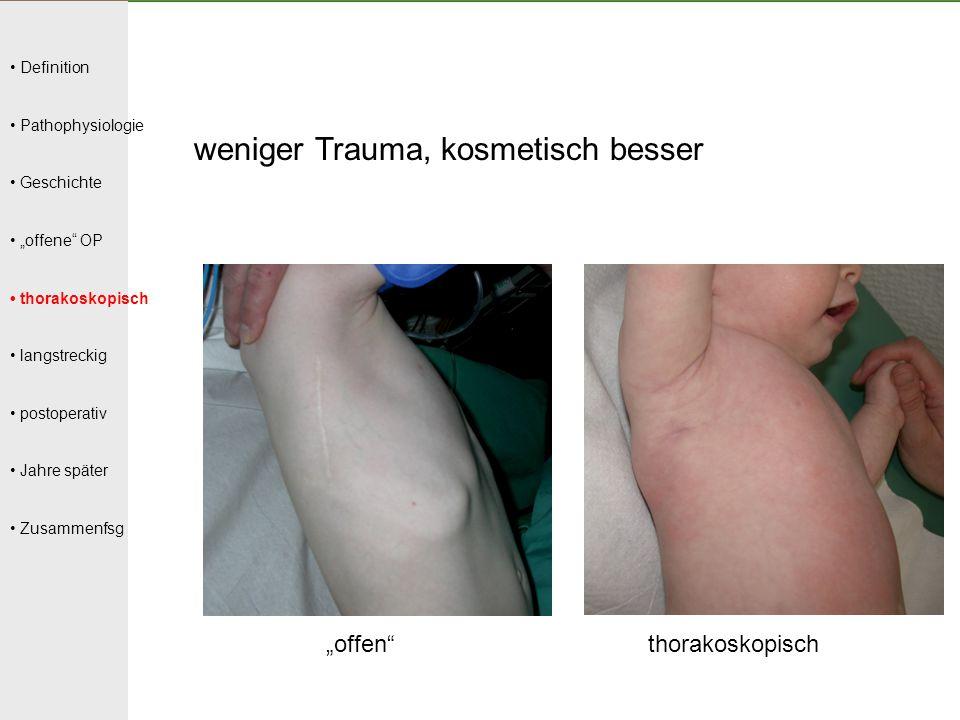 weniger Trauma, kosmetisch besser