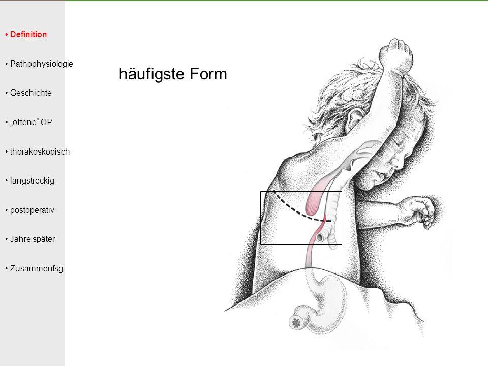 häufigste Form • Definition • Pathophysiologie • Geschichte