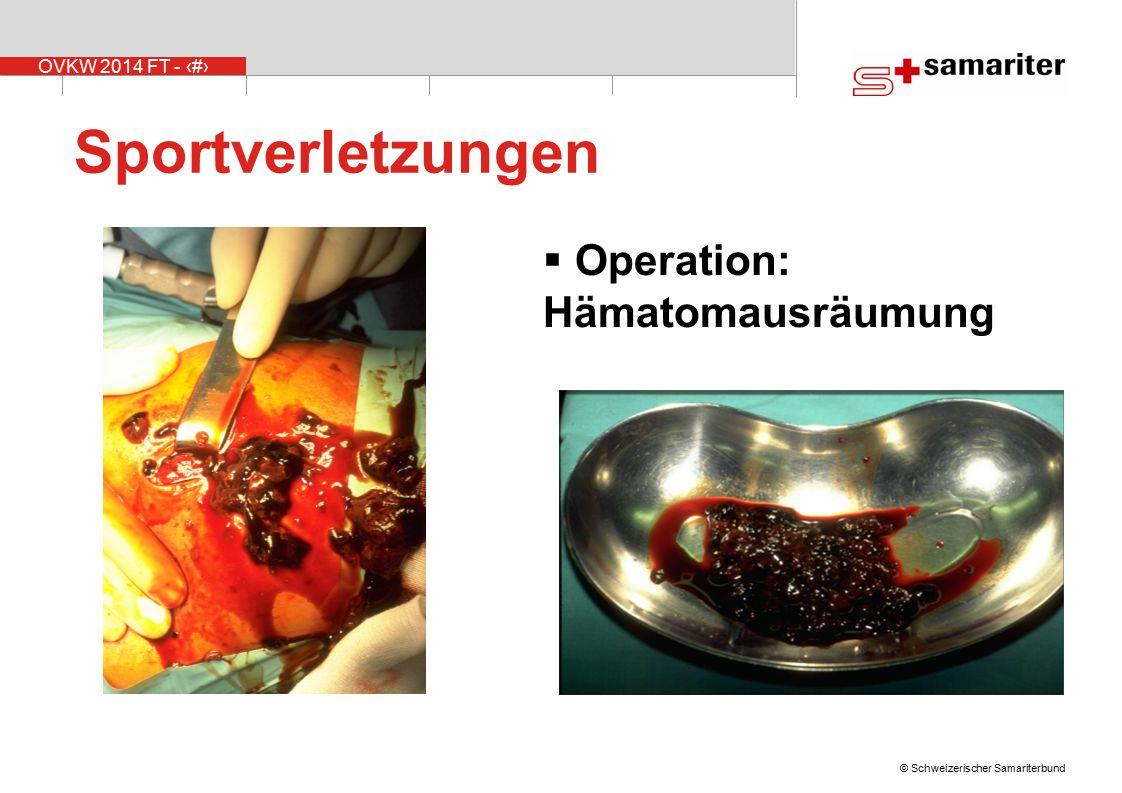 Sportverletzungen Operation: Hämatomausräumung