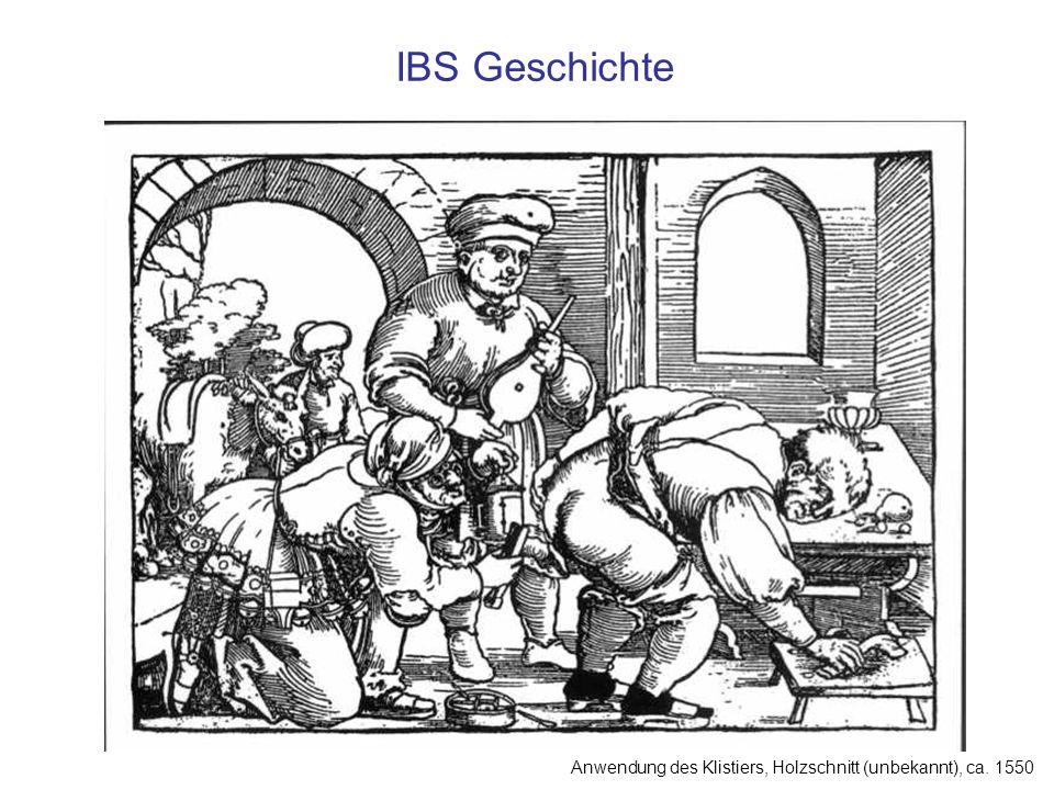 IBS Geschichte Anwendung des Klistiers, Holzschnitt (unbekannt), ca. 1550