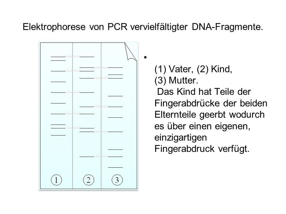 Elektrophorese von PCR vervielfältigter DNA-Fragmente.