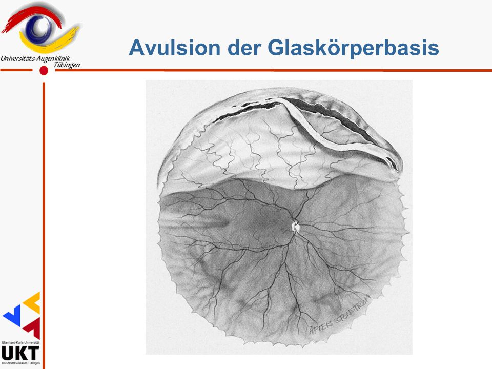 Avulsion der Glaskörperbasis