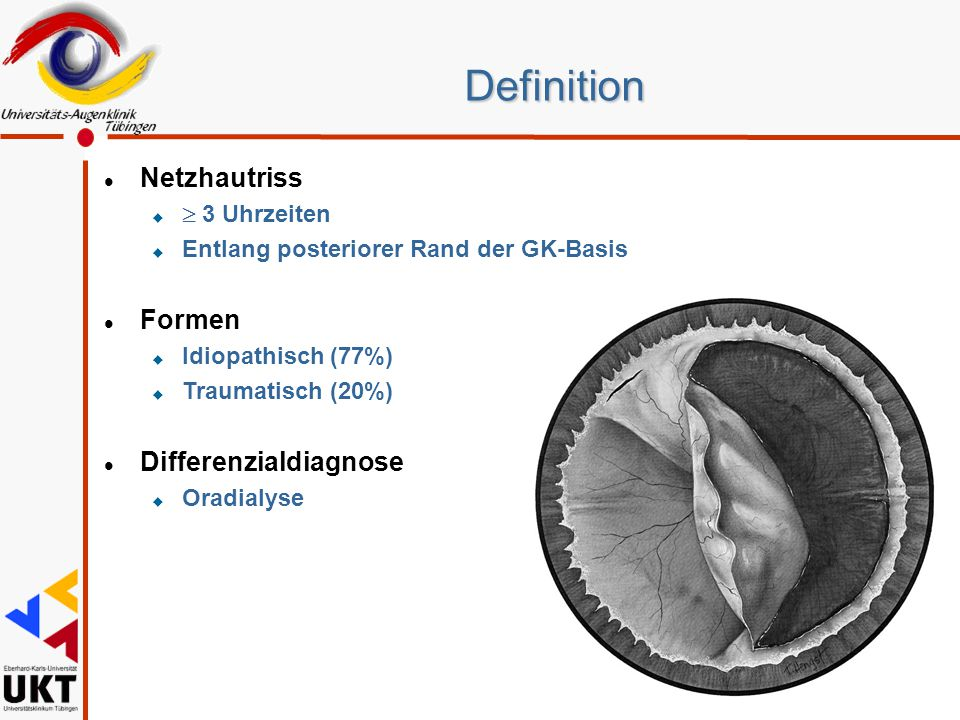 Definition Netzhautriss Formen Differenzialdiagnose  3 Uhrzeiten