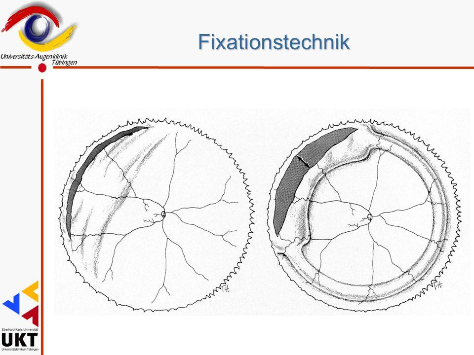 Fixationstechnik Zurückschlagen, und auch das Aufbuckeln ohne Endotamponade ist nur bedingt dauerhaft wirksam, weil es zu einer Slippage kommt.