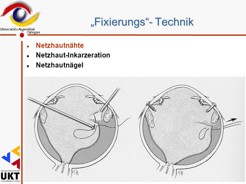 """""""Fixierungs - Technik"""