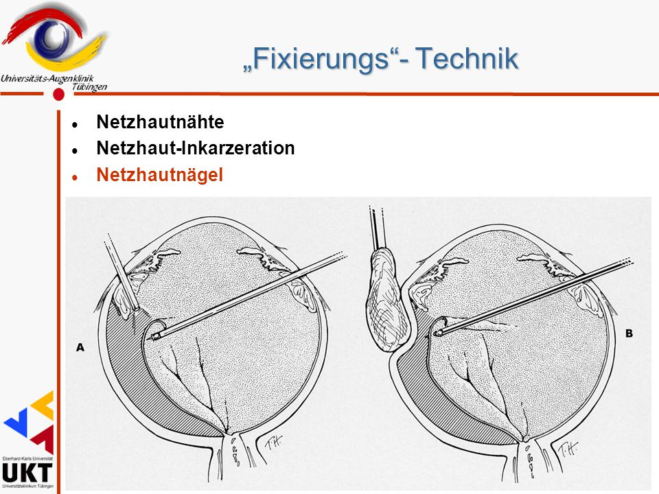 """Fixierungs - Technik"