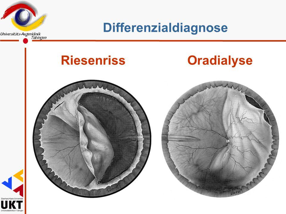Differenzialdiagnose