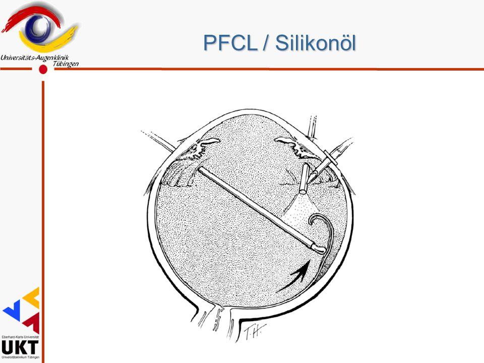 PFCL / Silikonöl Erst alles besser 1987 durch PFCL, Entfaltung von unten. 1971 Vitrektomie. Zivojnovic in Rotterdam und Haut in Paris.