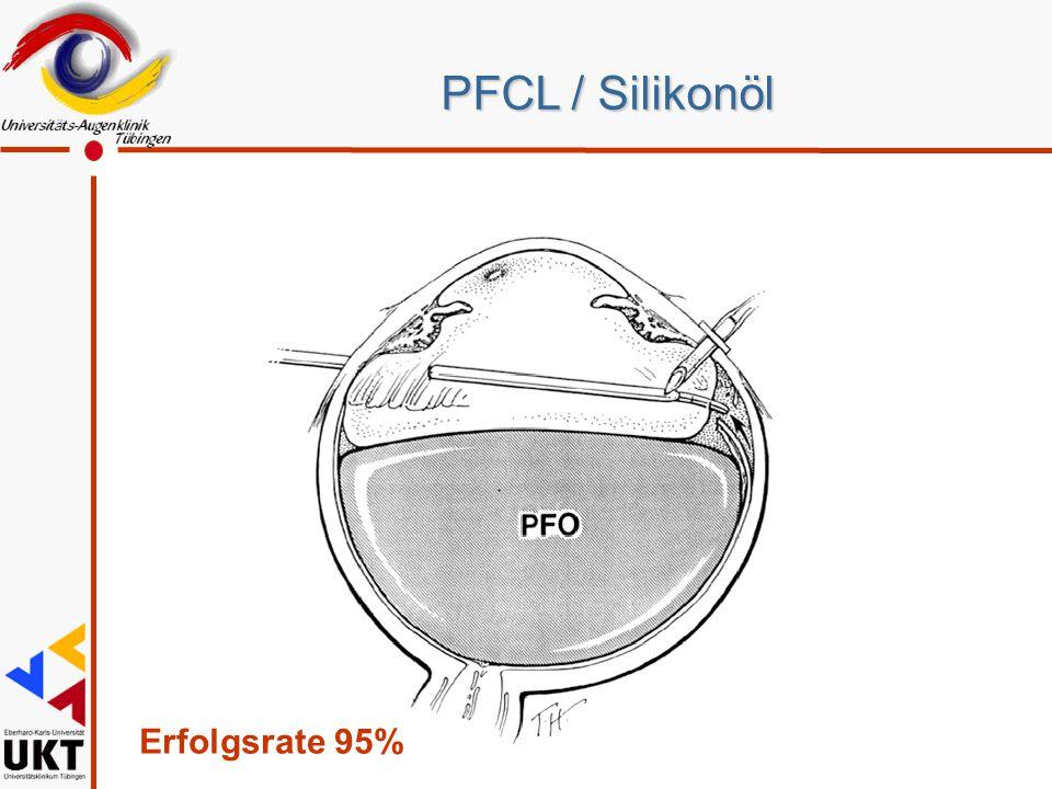 PFCL / Silikonöl Erfolgsrate 95% Sz