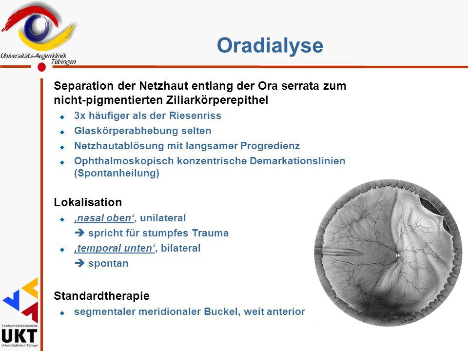 Oradialyse Separation der Netzhaut entlang der Ora serrata zum nicht-pigmentierten Ziliarkörperepithel.