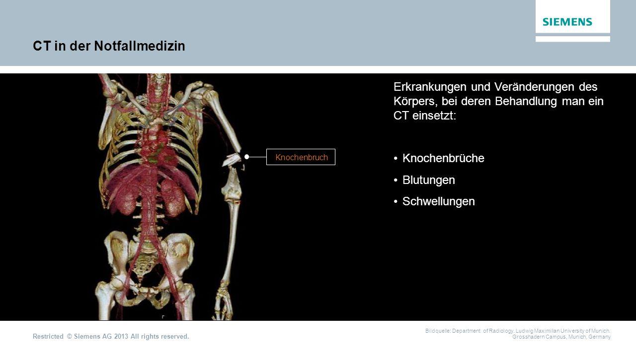CT in der Notfallmedizin
