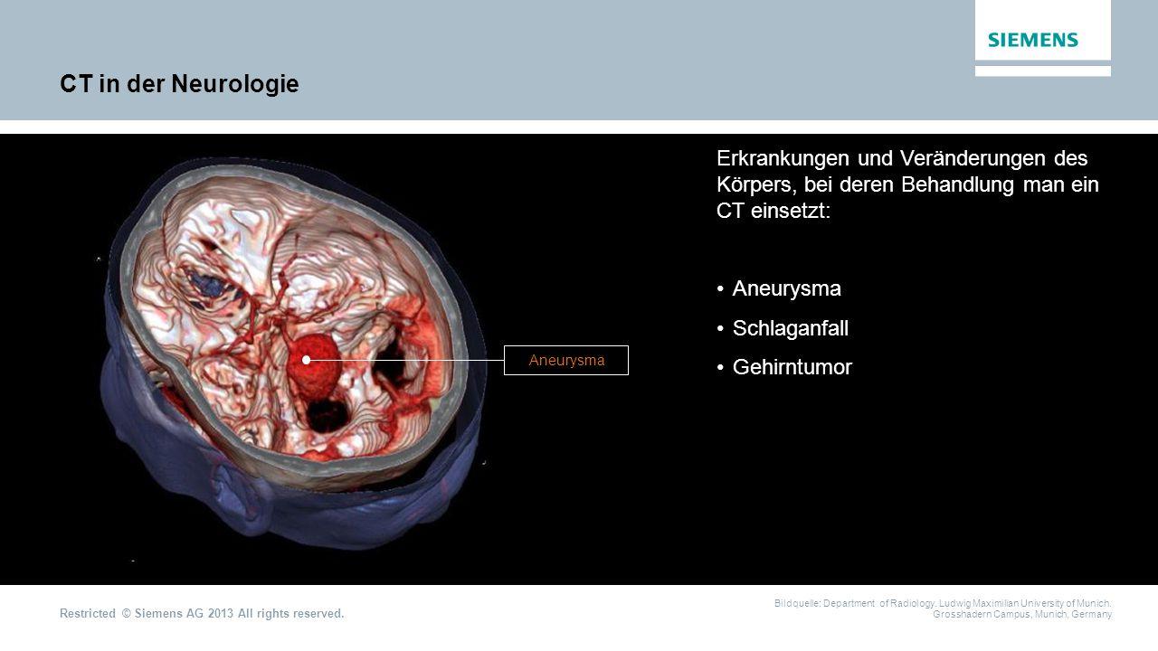 CT in der Neurologie Erkrankungen und Veränderungen des Körpers, bei deren Behandlung man ein CT einsetzt: