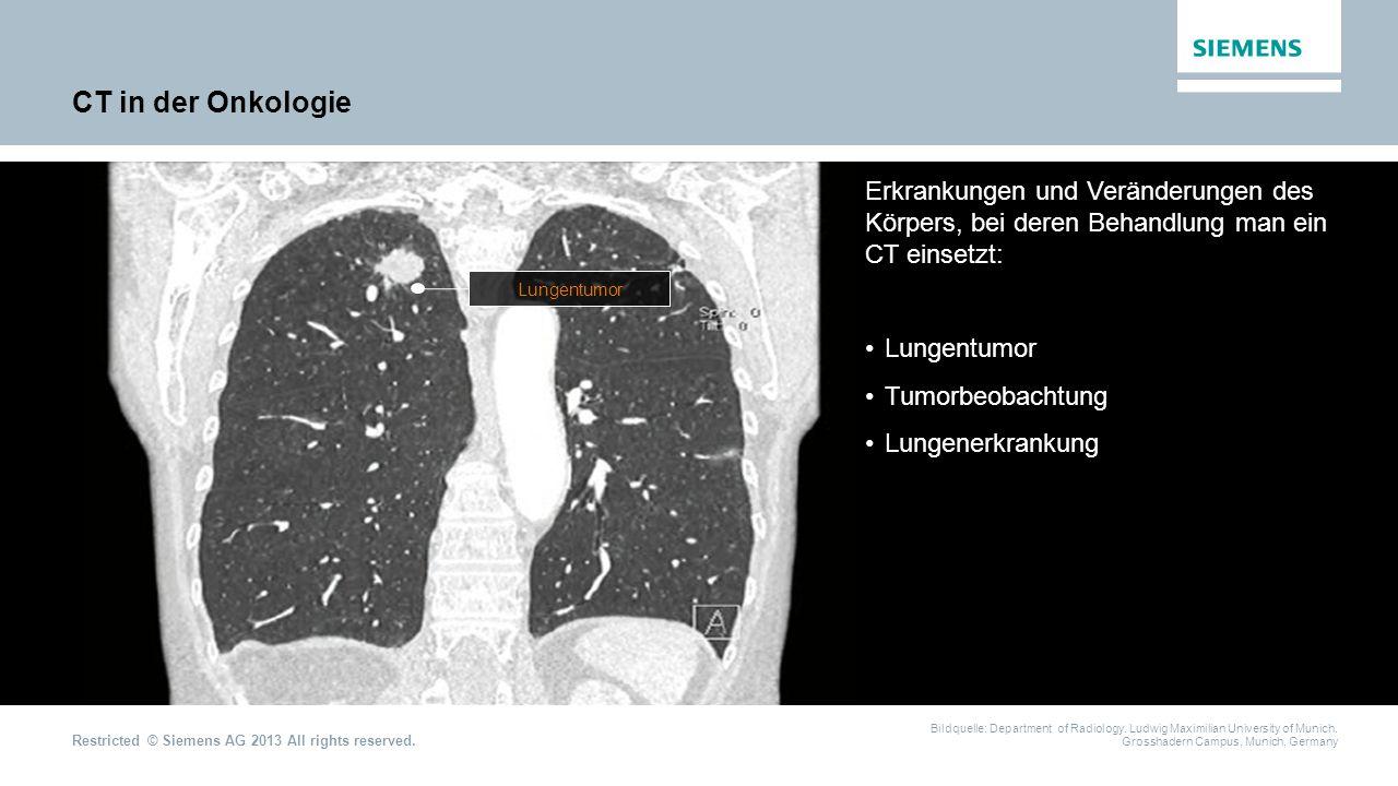 CT in der Onkologie Erkrankungen und Veränderungen des Körpers, bei deren Behandlung man ein CT einsetzt: