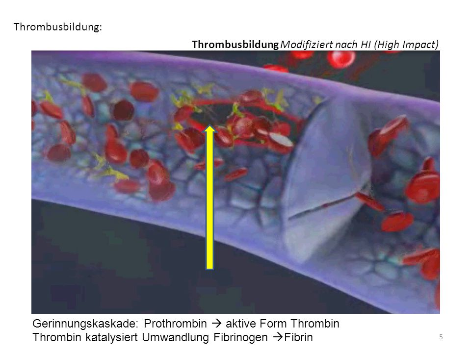 Thrombusbildung: Thrombusbildung Modifiziert nach HI (High Impact) Gerinnungskaskade: Prothrombin  aktive Form Thrombin.