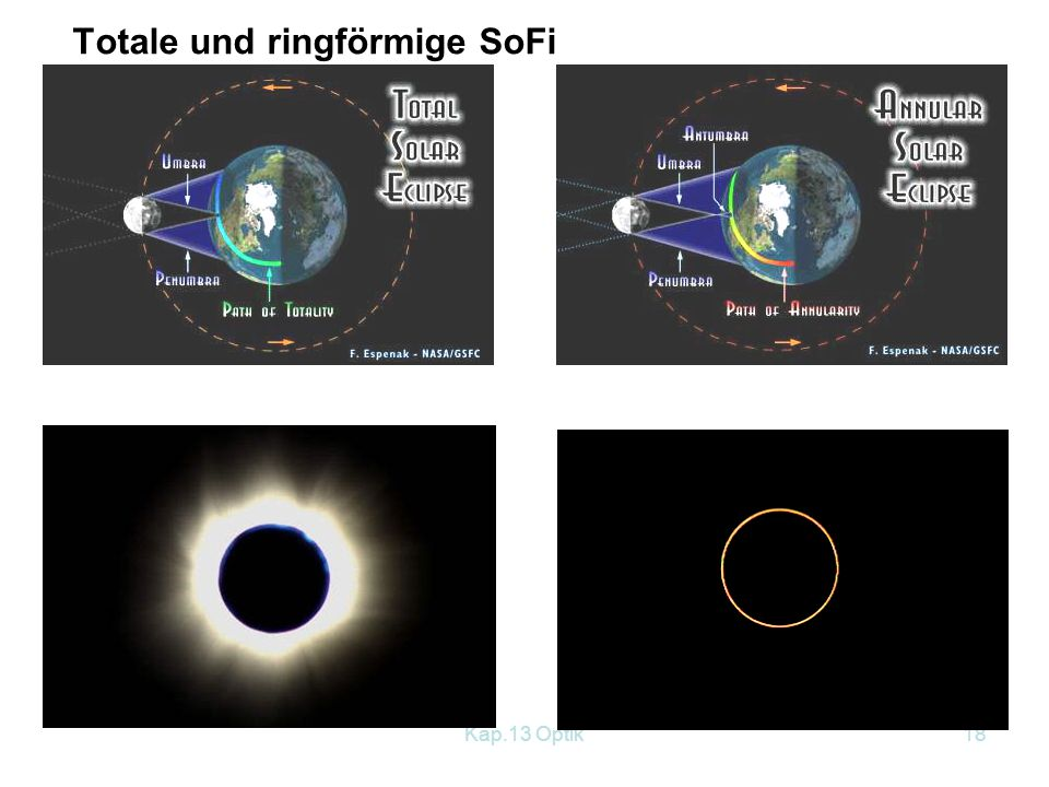 Totale und ringförmige SoFi