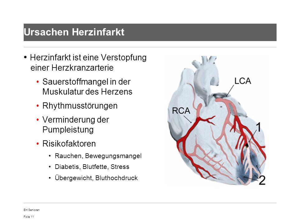 Herzinfarkt ist eine Verstopfung einer Herzkranzarterie