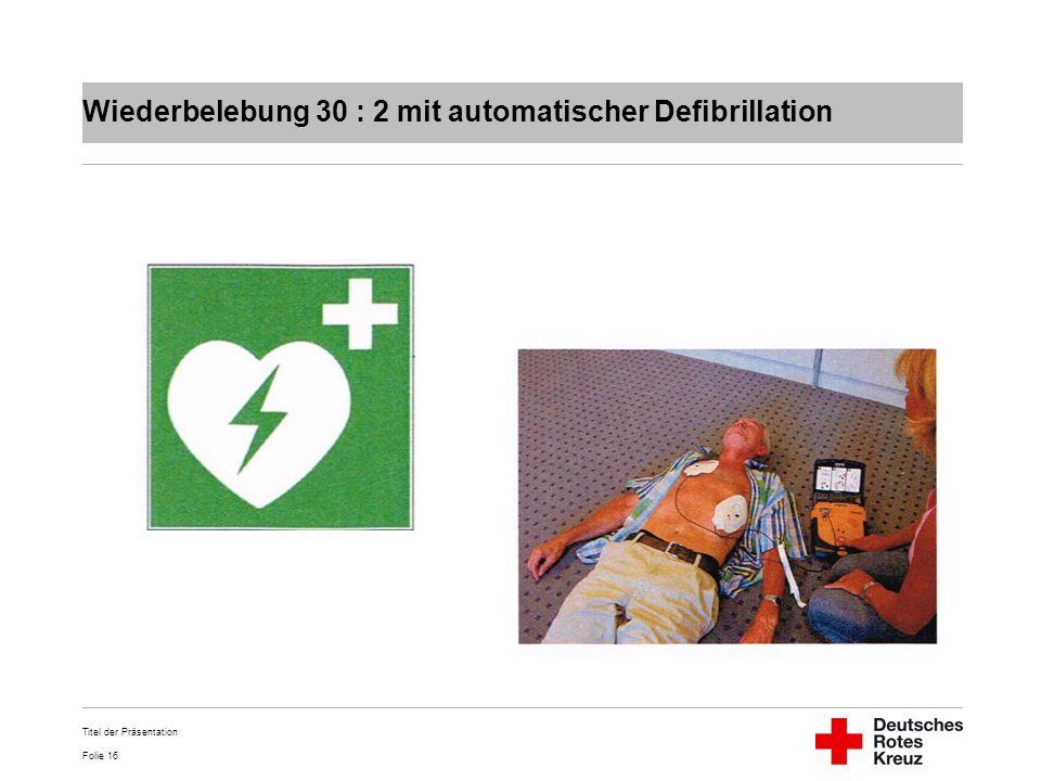 Wiederbelebung 30 : 2 mit automatischer Defibrillation