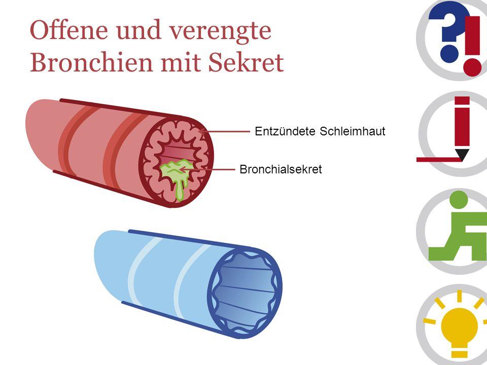Offene und verengte Bronchien mit Sekret