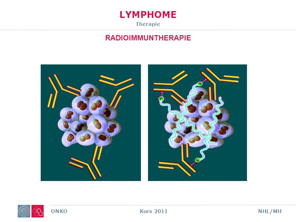 LYMPHOME Therapie RADIOIMMUNTHERAPIE ONKO Kurs 2011 NHL/MH