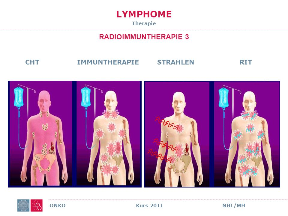 LYMPHOME Therapie RADIOIMMUNTHERAPIE 3 CHT IMMUNTHERAPIE STRAHLEN RIT