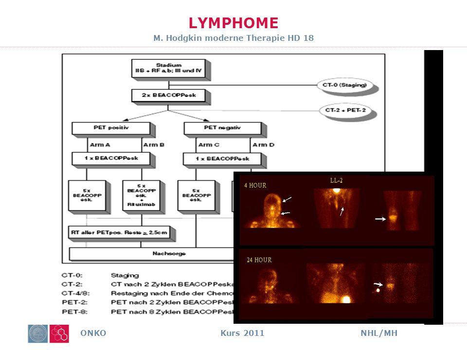 LYMPHOME M. Hodgkin moderne Therapie HD 18