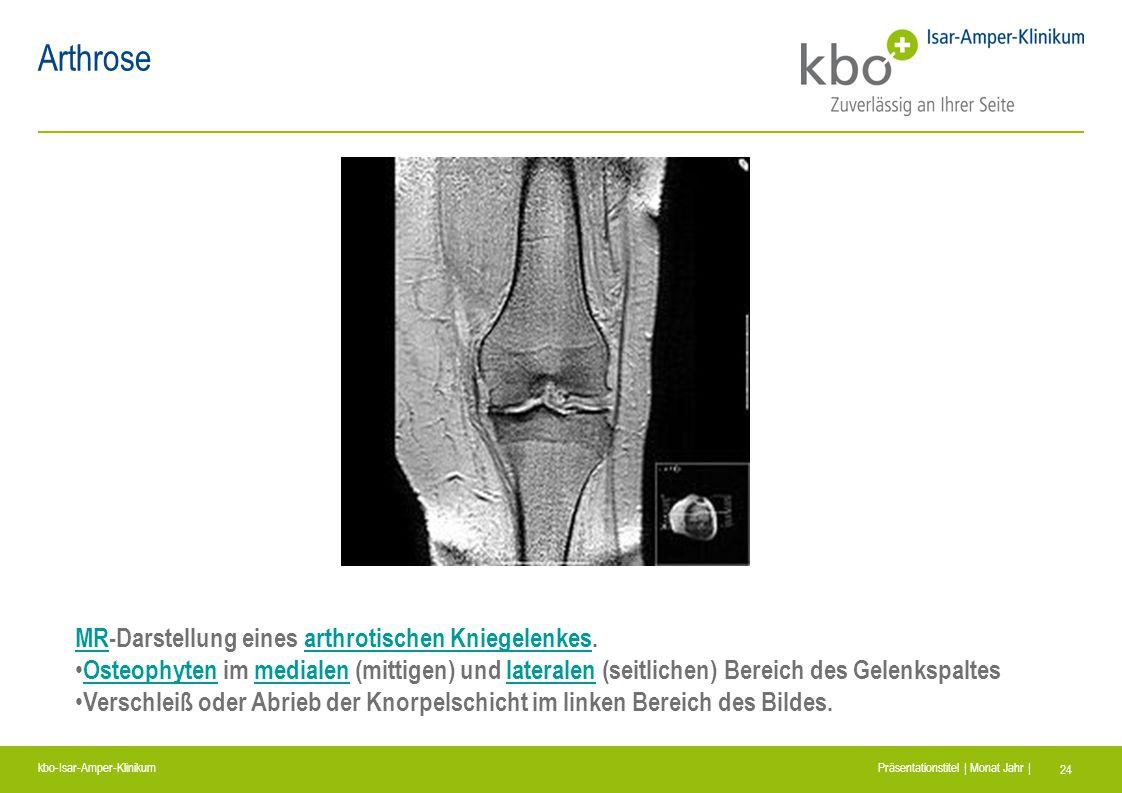 Arthrose MR-Darstellung eines arthrotischen Kniegelenkes.